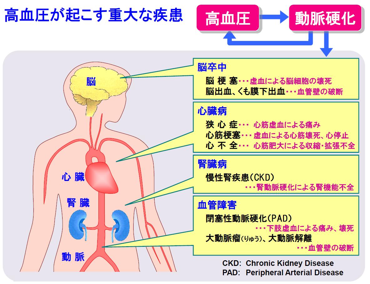 症 狭 血圧 心
